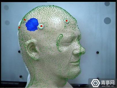 skin_dot_tumor