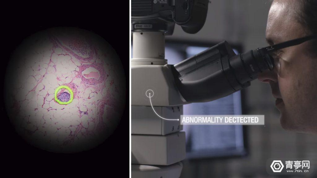 谷歌展示AR显微镜,可快速发现癌细胞