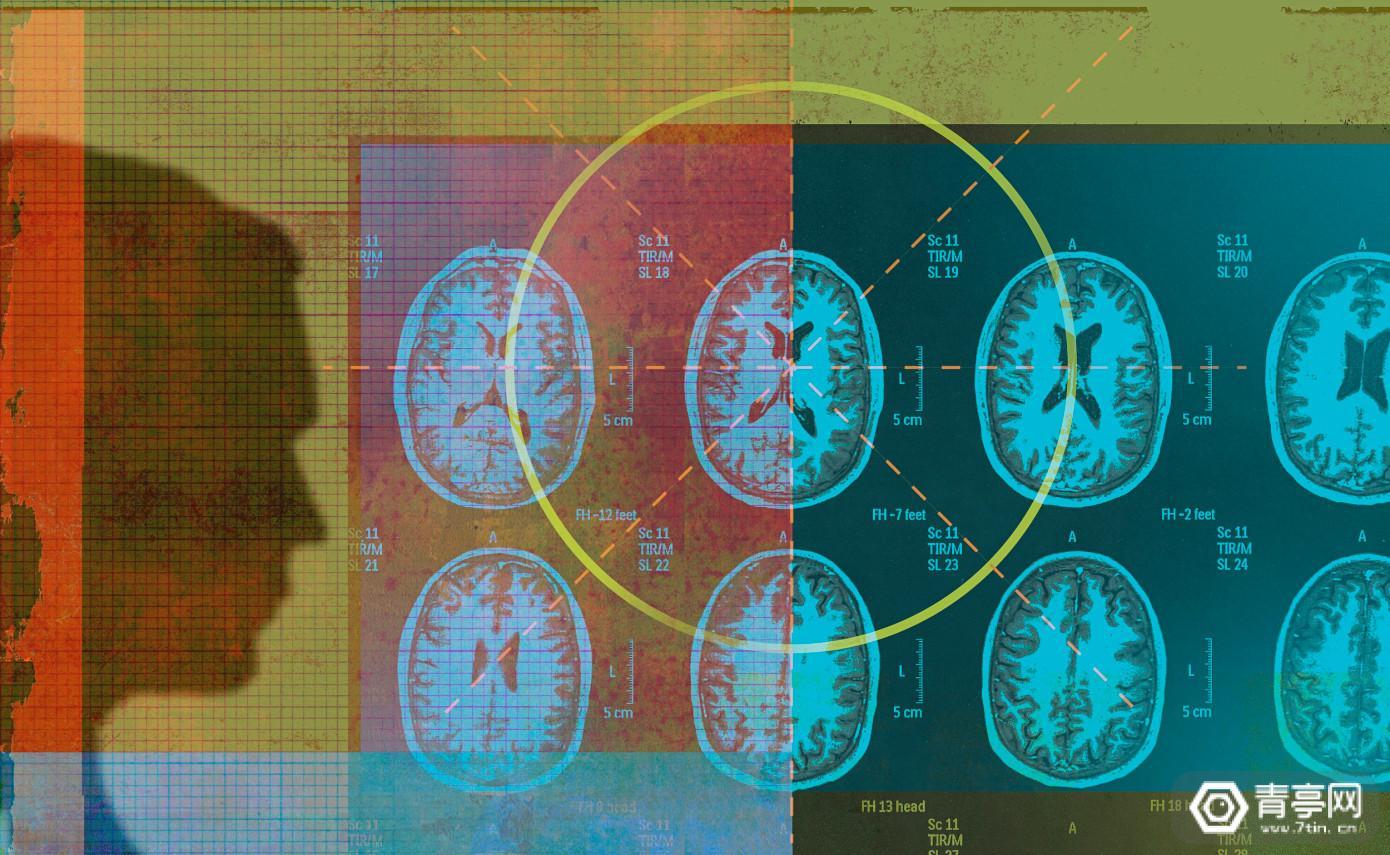 """为加快医学扫描过程,Facebook科研人员训练AI""""脑补""""MRI成像"""