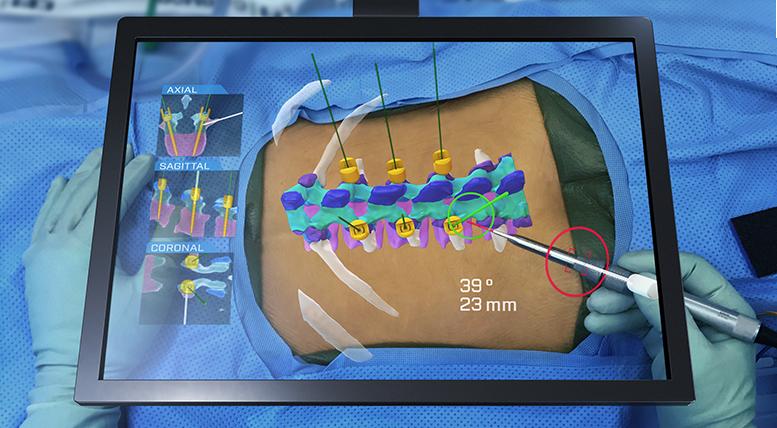 HoloSurgical展示AR+AI手术导航系统