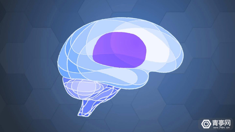 马斯克:脑机接口或一年内植入人脑,可修复任何大脑问题