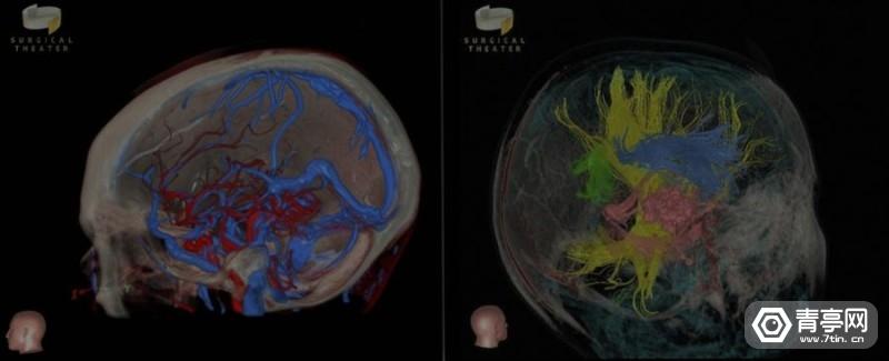 Surgical-Theatre-360-visualization